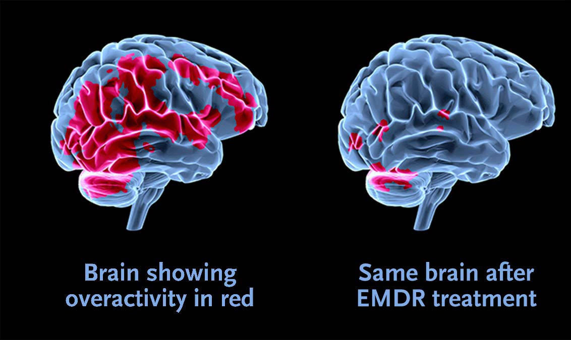 emdr training